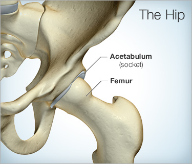 hip replacement diagram