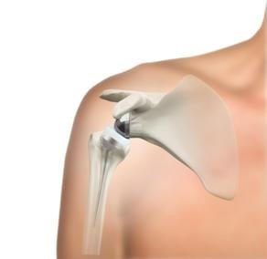 reverse- shoulder replacement