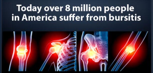 bursitis-statistis