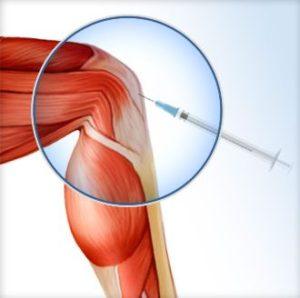 knee prp treatment