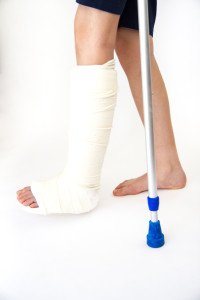 Broken Bones - Bone Fracture Diagnosis and Recovery Times