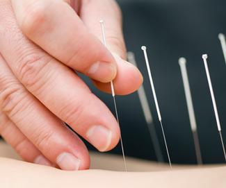 acupuntura-miami