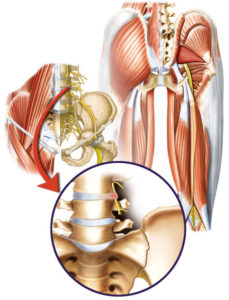 Tratamiento de cadera anterior All-Pro Orthopedics