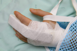 What to do if you broke your finger