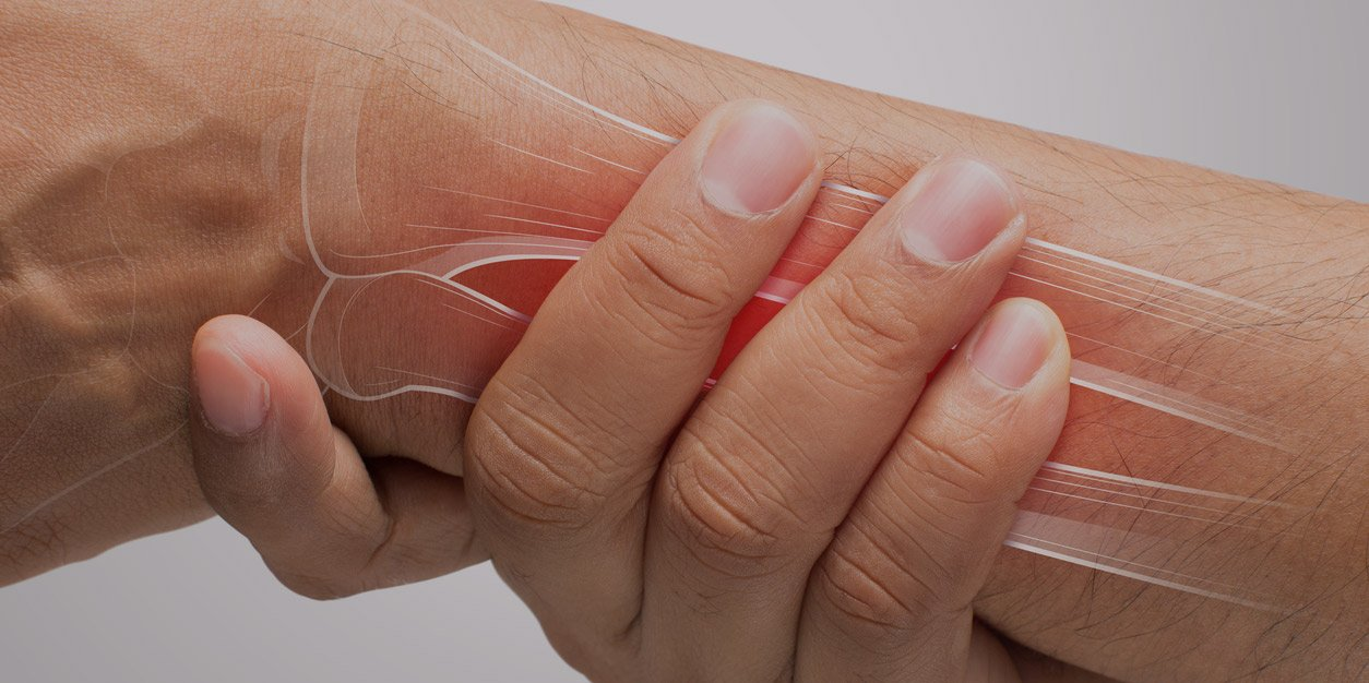 dealing with a colles fracture