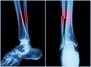 broken fibula x-ray