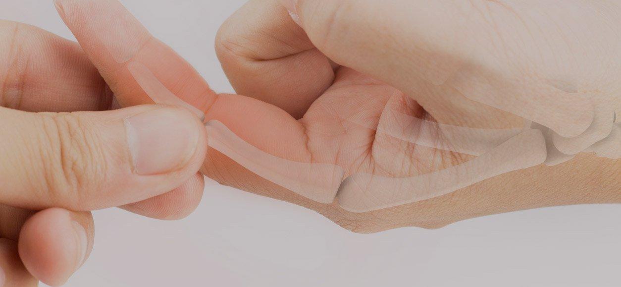 treating a broken finger